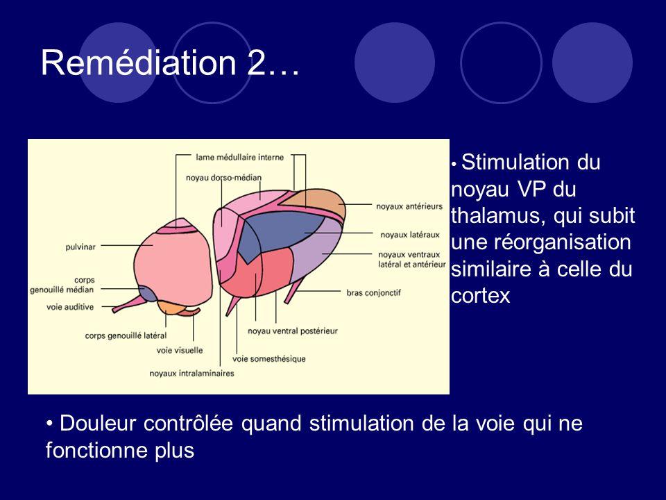 Remédiation 2… Stimulation du noyau VP du thalamus, qui subit une réorganisation similaire à celle du cortex.