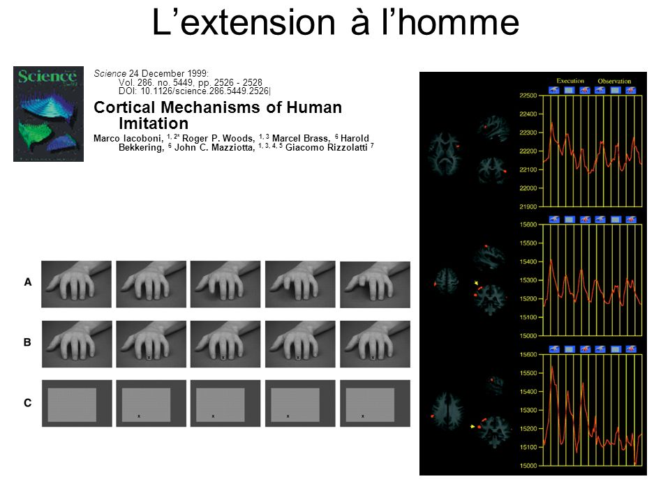L'extension à l'homme Cortical Mechanisms of Human Imitation