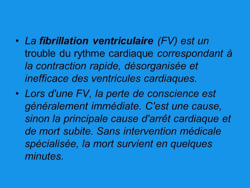La fibrillation ventriculaire (FV) est un trouble du rythme cardiaque correspondant à la contraction rapide, désorganisée et inefficace des ventricules cardiaques.