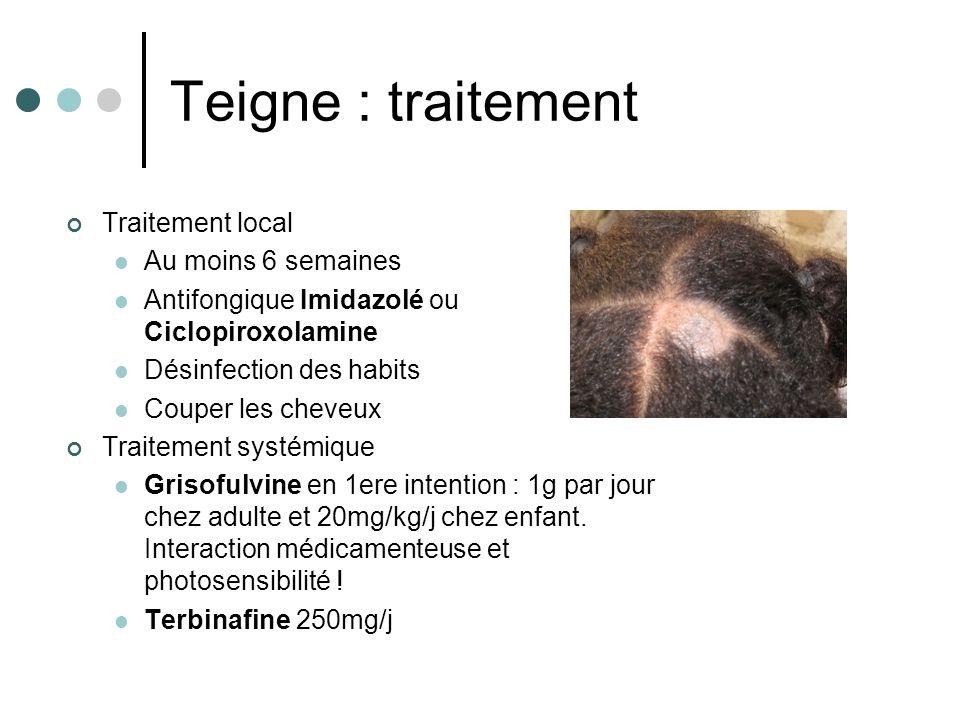 Teigne : traitement Traitement local Au moins 6 semaines