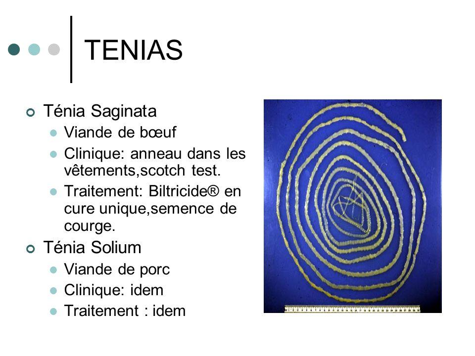 TENIAS Ténia Saginata Ténia Solium Viande de bœuf