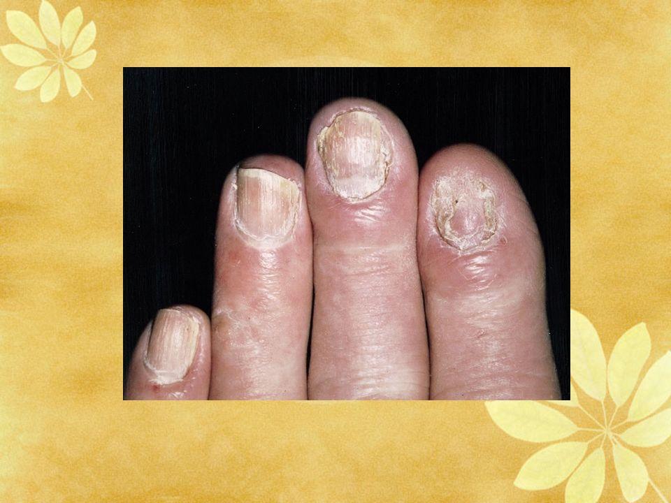 Onyxis candidosique des doigts avec p駻ionyxis.