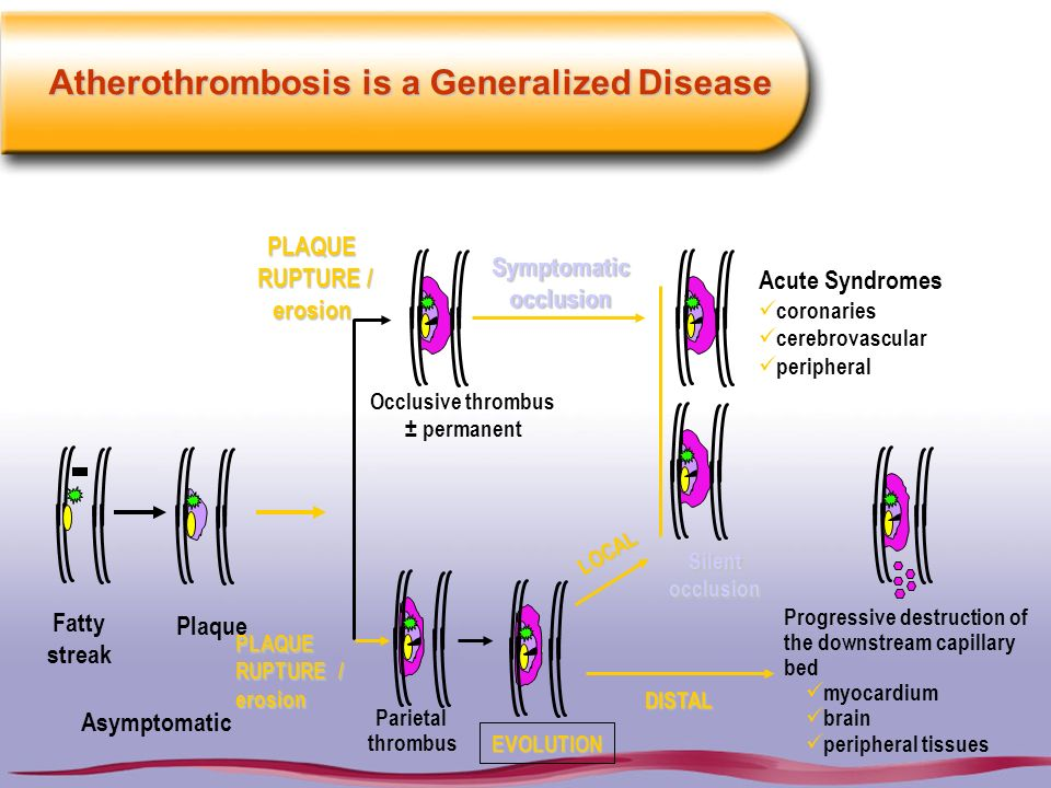 Atherothrombosis is a Generalized Disease