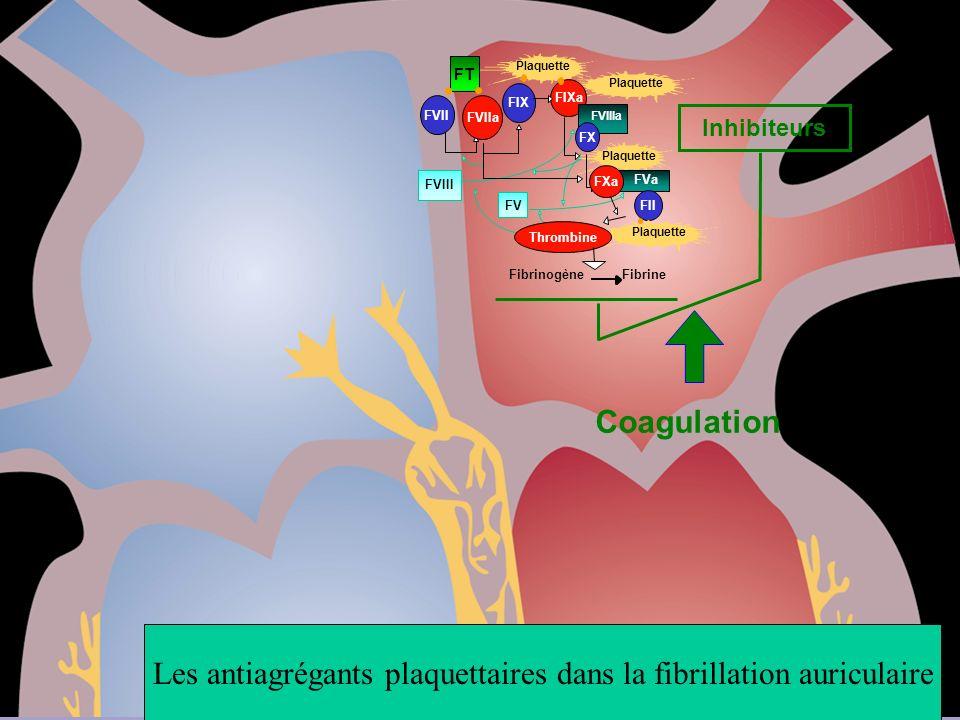 Les antiagrégants plaquettaires dans la fibrillation auriculaire