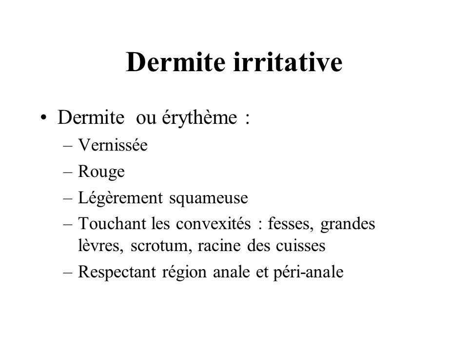 Dermite irritative Dermite ou érythème : Vernissée Rouge