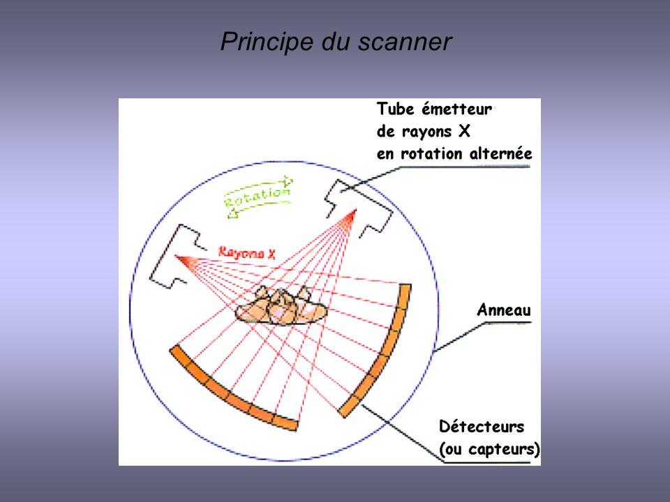 Principe du scanner