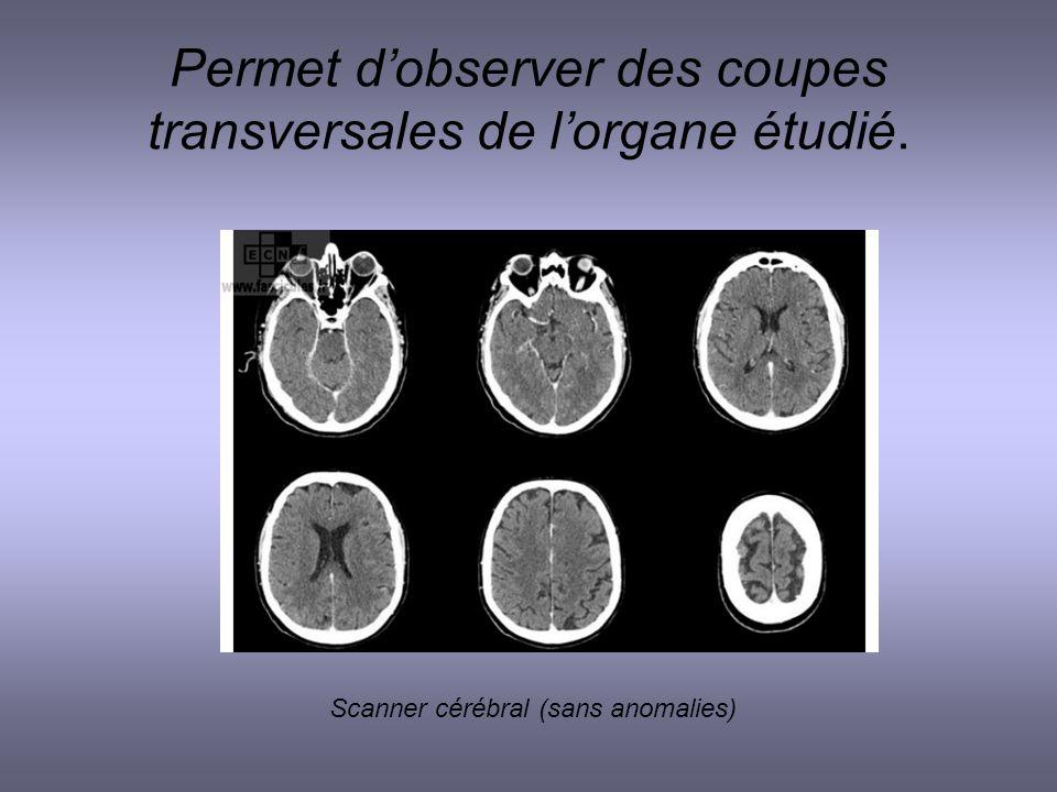 Permet d'observer des coupes transversales de l'organe étudié.
