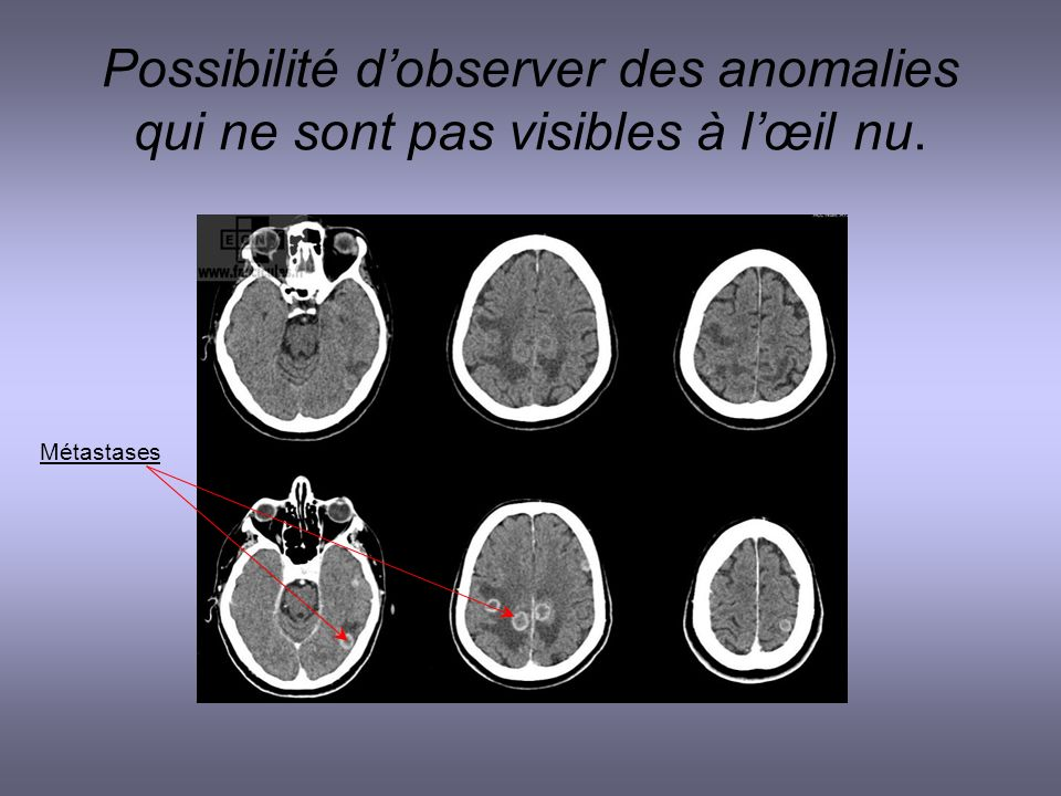Possibilité d'observer des anomalies qui ne sont pas visibles à l'œil nu.