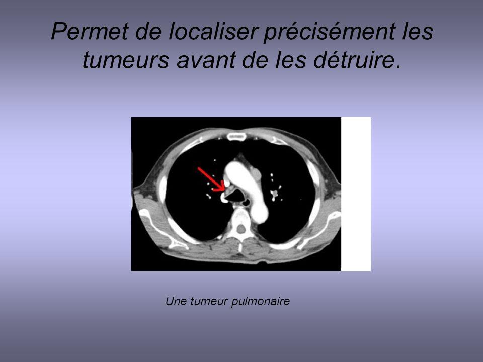 Permet de localiser précisément les tumeurs avant de les détruire.