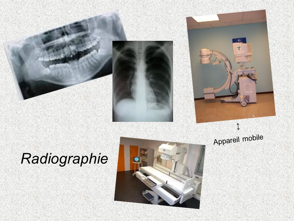 ↕ Appareil mobile Radiographie