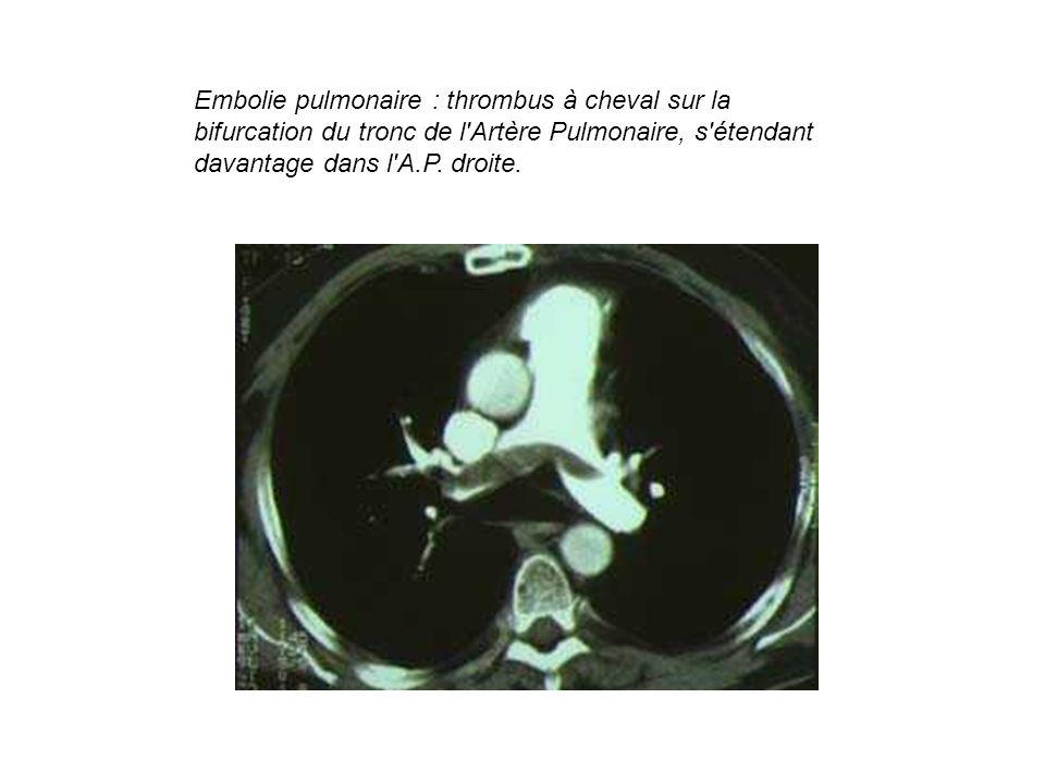 Embolie pulmonaire : thrombus à cheval sur la bifurcation du tronc de l Artère Pulmonaire, s étendant davantage dans l A.P.