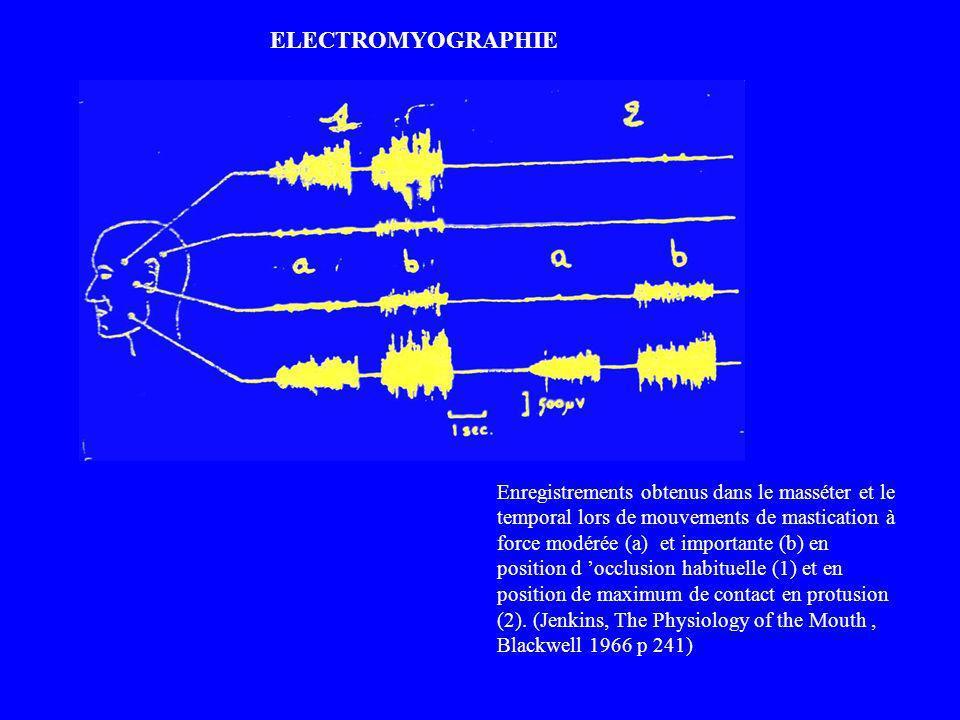 ELECTROMYOGRAPHIE