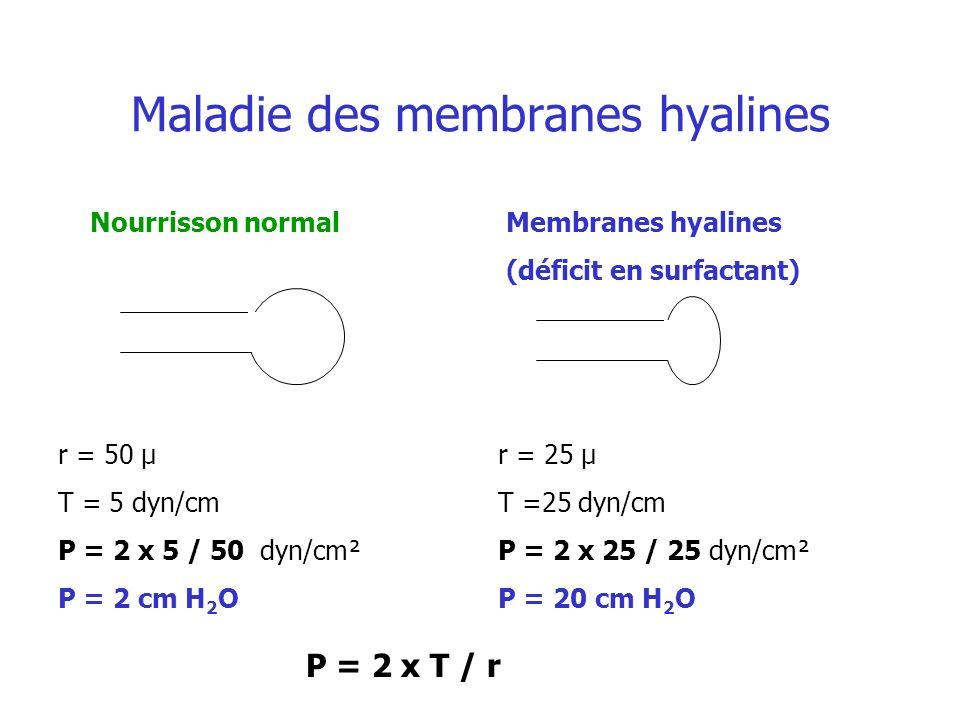 Maladie des membranes hyalines