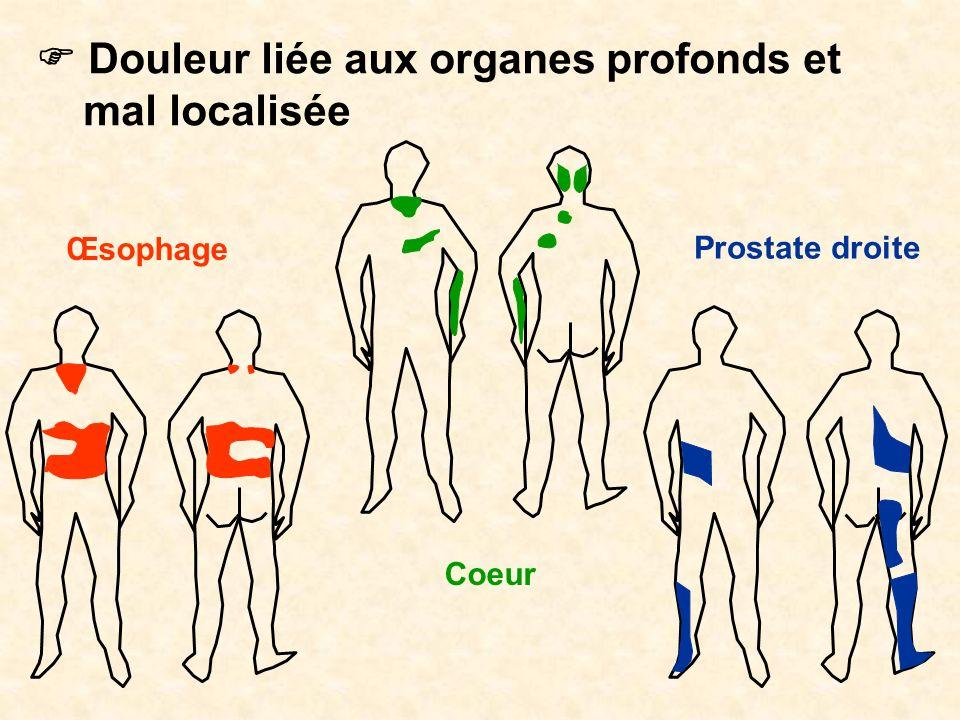 F Douleur liée aux organes profonds et mal localisée