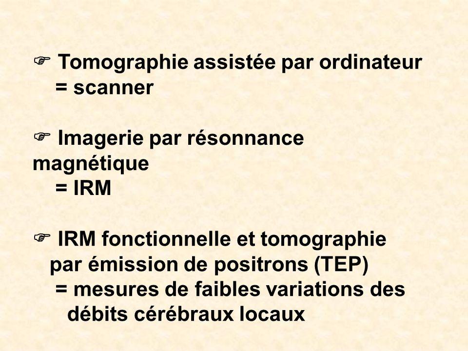 F Tomographie assistée par ordinateur