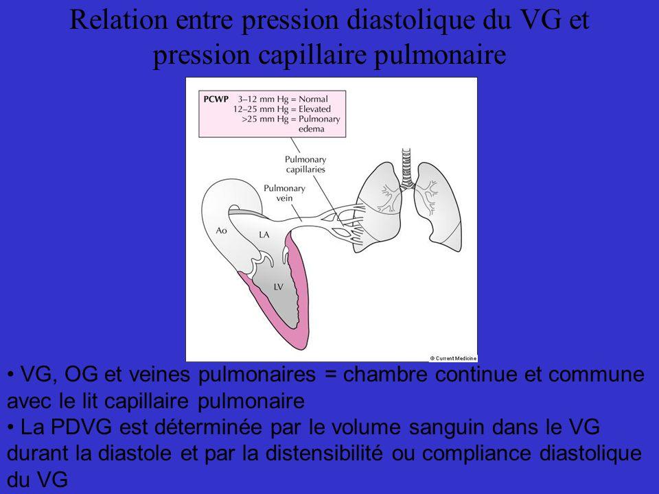 Relation entre pression diastolique du VG et pression capillaire pulmonaire