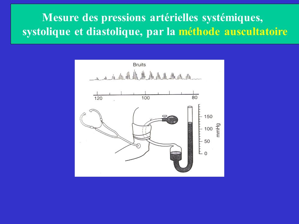 Mesure des pressions artérielles systémiques,