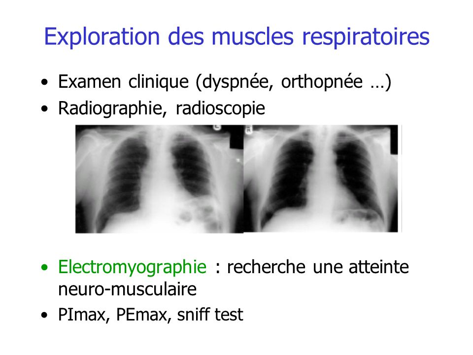 Exploration des muscles respiratoires