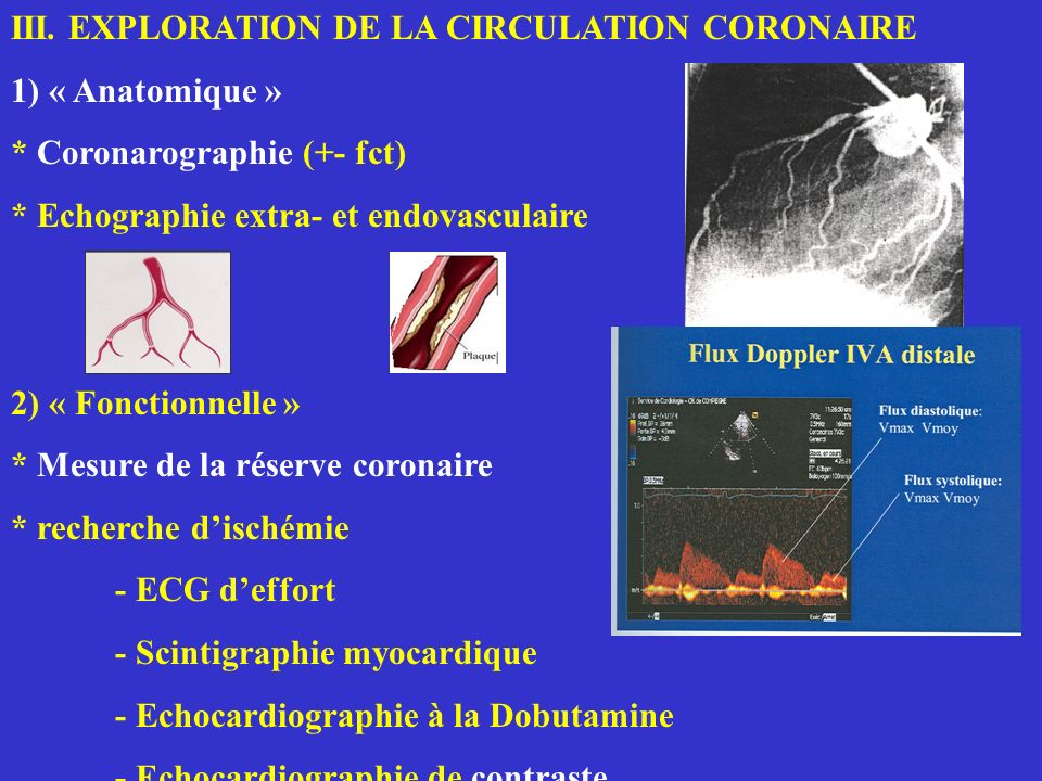 III. EXPLORATION DE LA CIRCULATION CORONAIRE