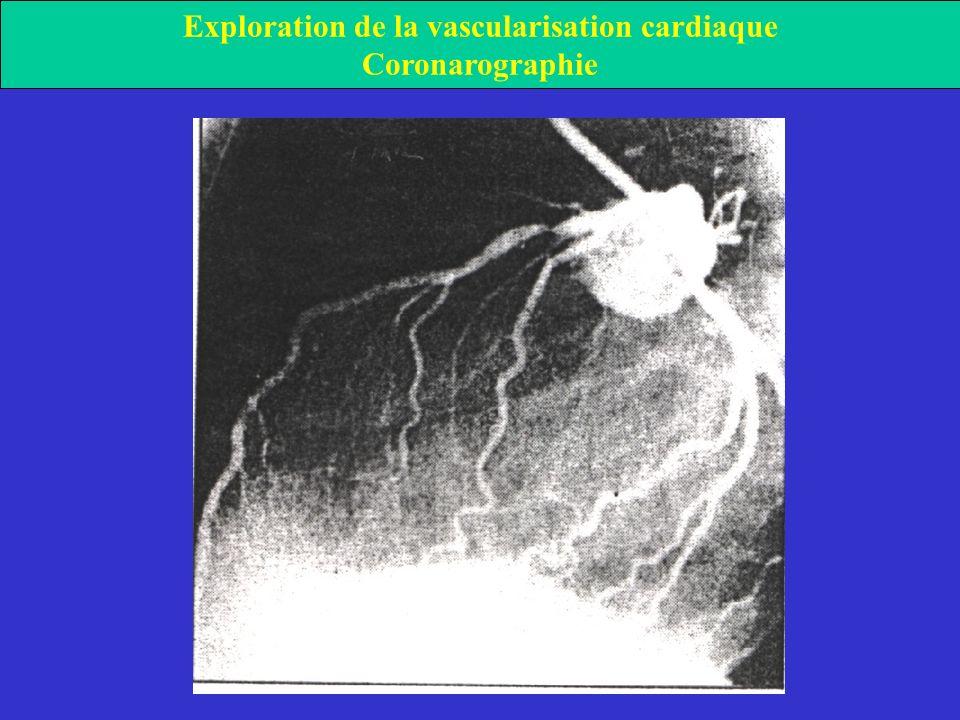 Exploration de la vascularisation cardiaque