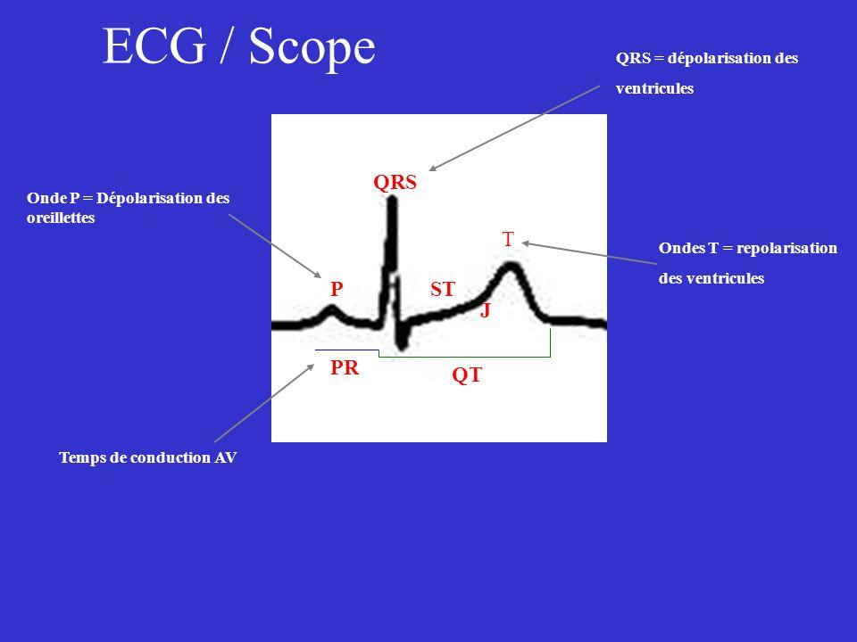 ECG / Scope QRS T P ST J PR QT QRS = dépolarisation des ventricules