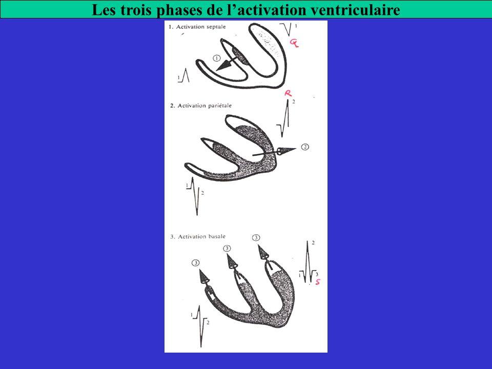 Les trois phases de l'activation ventriculaire