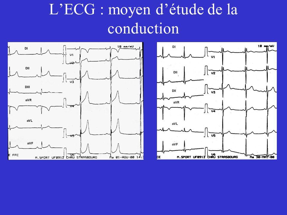 L'ECG : moyen d'étude de la conduction