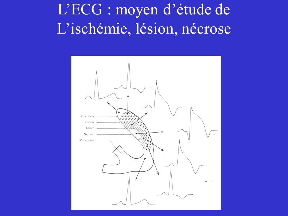 L'ECG : moyen d'étude de L'ischémie, lésion, nécrose