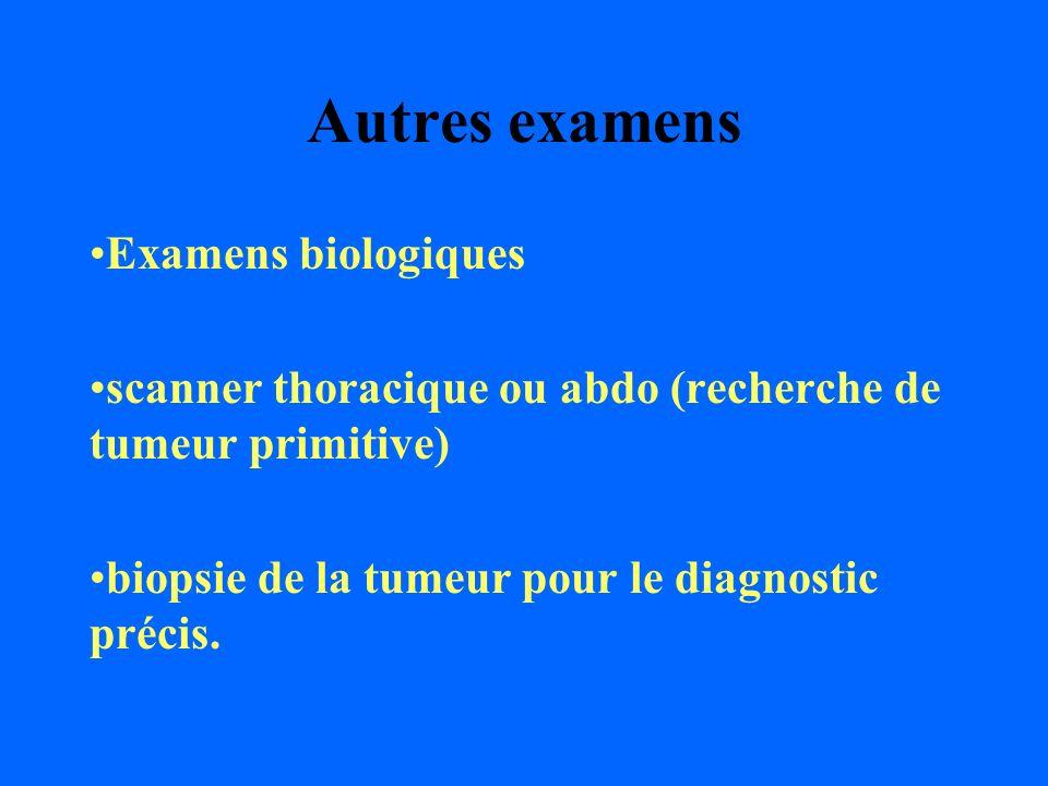 Autres examens Examens biologiques