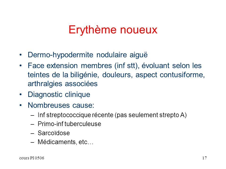 Erythème noueux Dermo-hypodermite nodulaire aiguë
