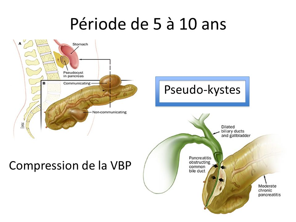 Période de 5 à 10 ans Pseudo-kystes Compression de la VBP