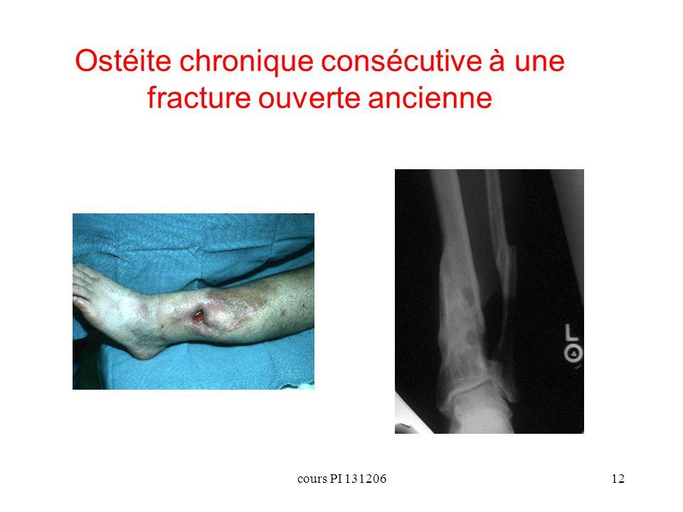 Ostéite chronique consécutive à une fracture ouverte ancienne