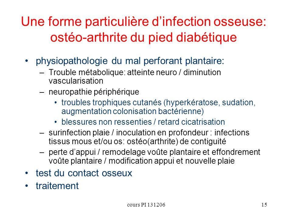 Une forme particulière d'infection osseuse: ostéo-arthrite du pied diabétique