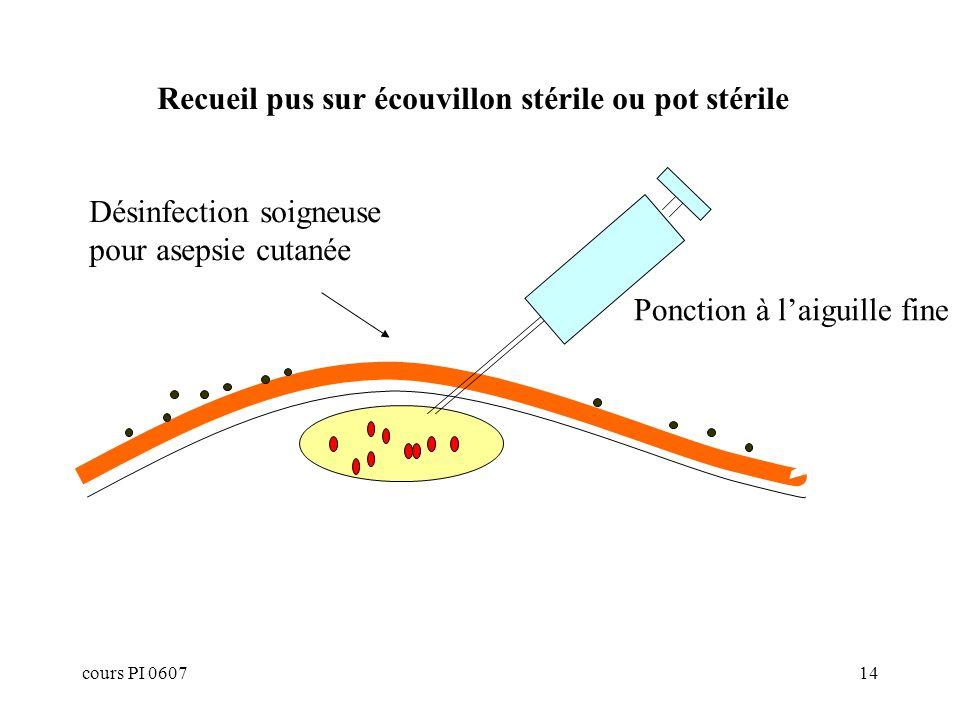 Recueil pus sur écouvillon stérile ou pot stérile