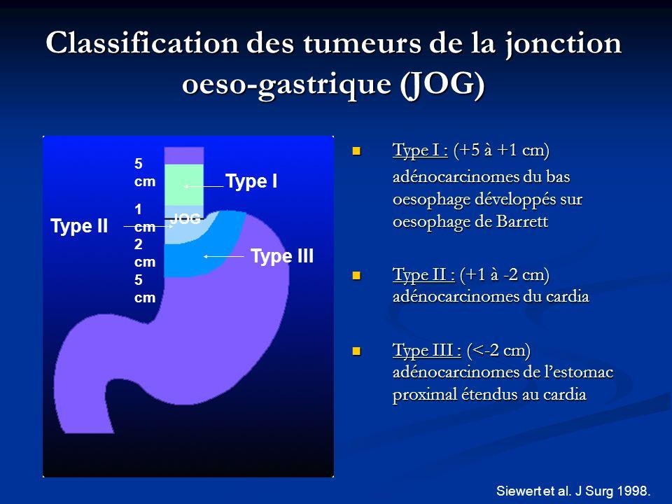 Classification des tumeurs de la jonction oeso-gastrique (JOG)
