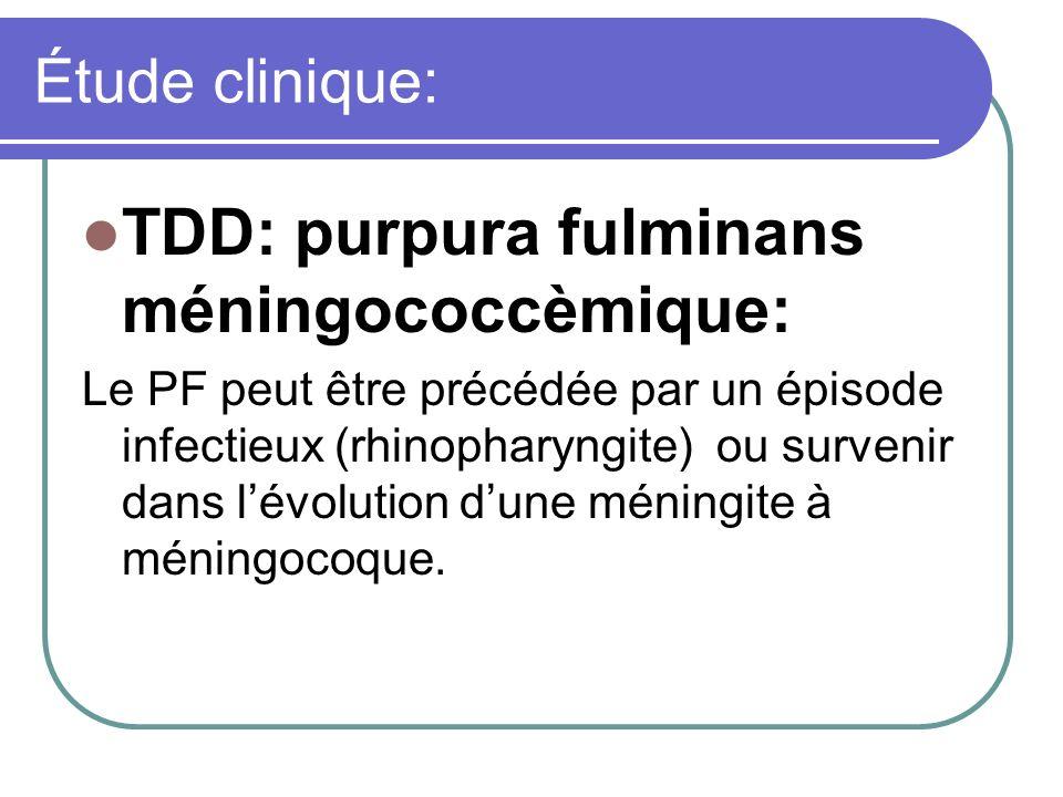 TDD: purpura fulminans méningococcèmique: