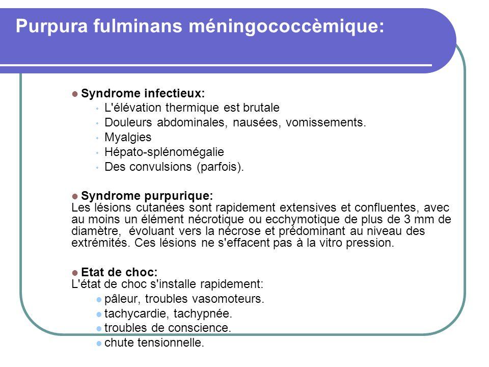 Purpura fulminans méningococcèmique: