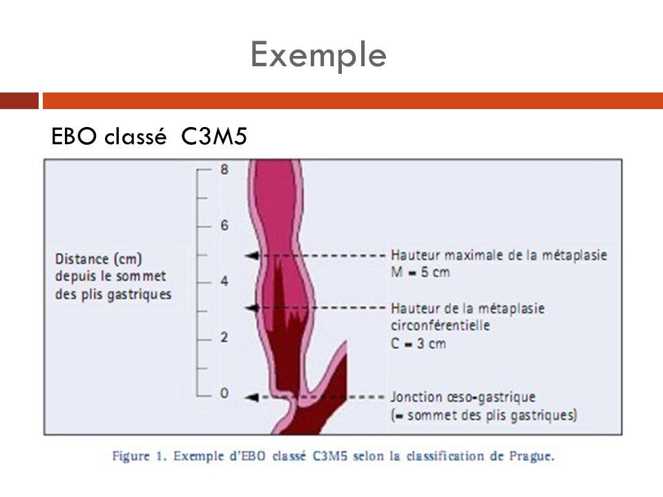 Exemple EBO classé C3M5
