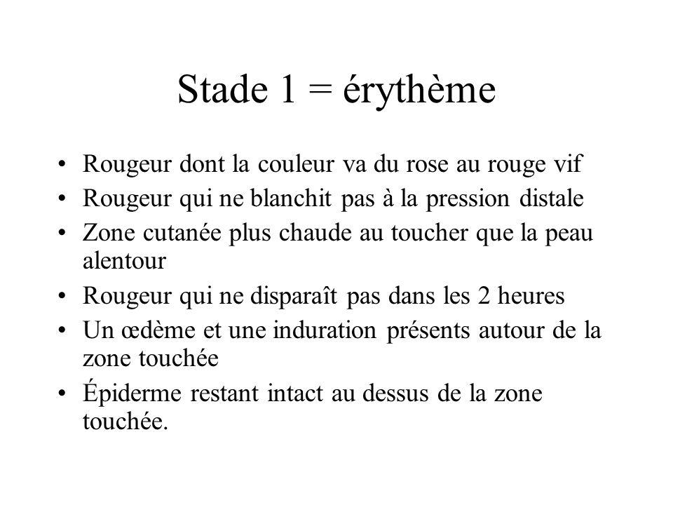 Stade 1 = érythème Rougeur dont la couleur va du rose au rouge vif