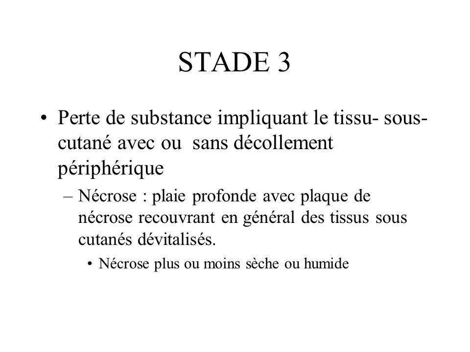 STADE 3Perte de substance impliquant le tissu- sous- cutané avec ou sans décollement périphérique.