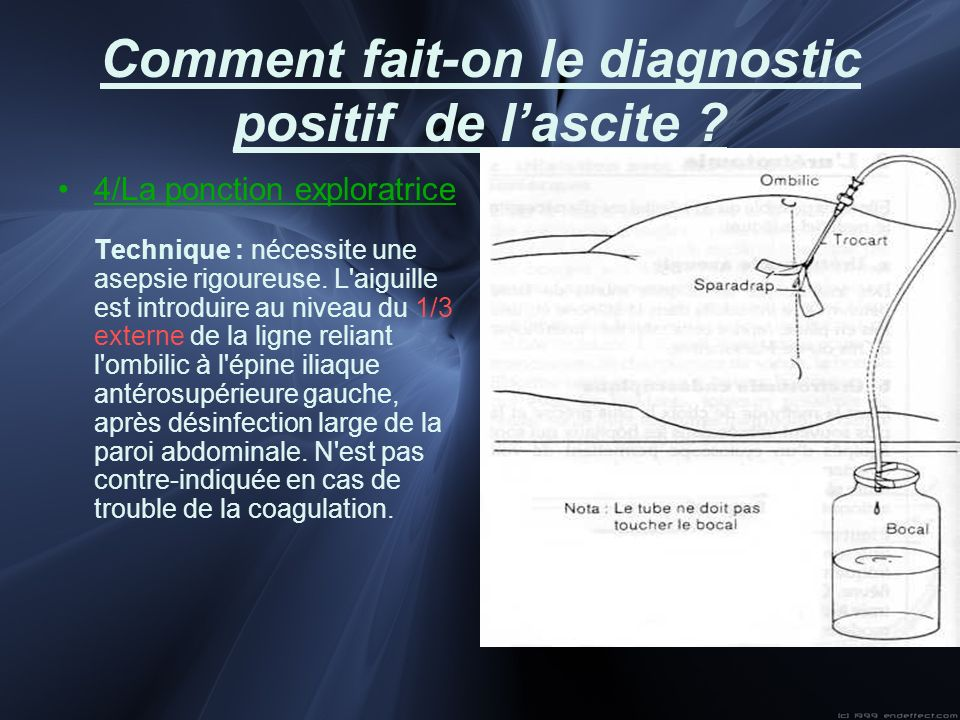 Comment fait-on le diagnostic positif de l'ascite