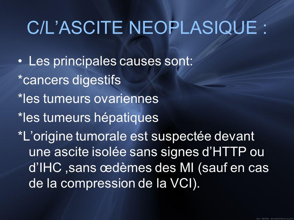 C/L'ASCITE NEOPLASIQUE :