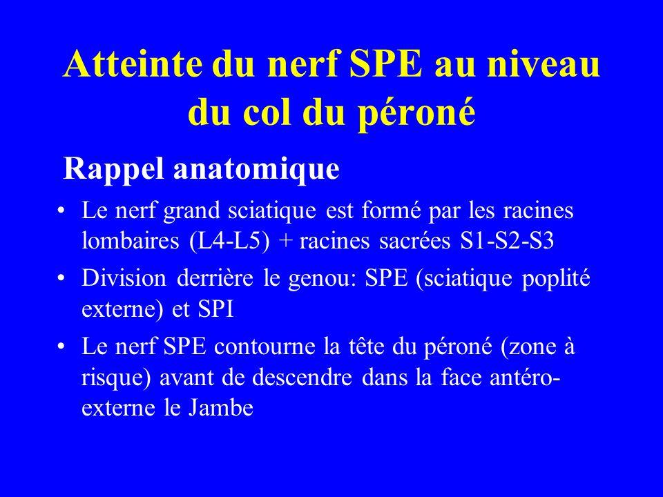 Atteinte du nerf SPE au niveau du col du péroné