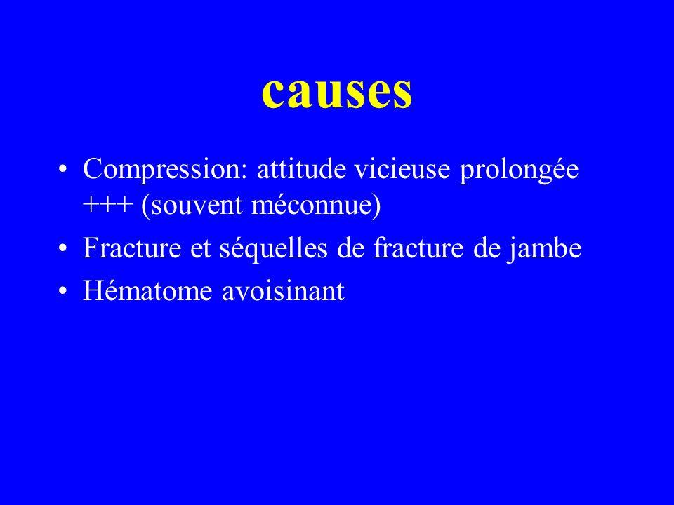 causes Compression: attitude vicieuse prolongée +++ (souvent méconnue)