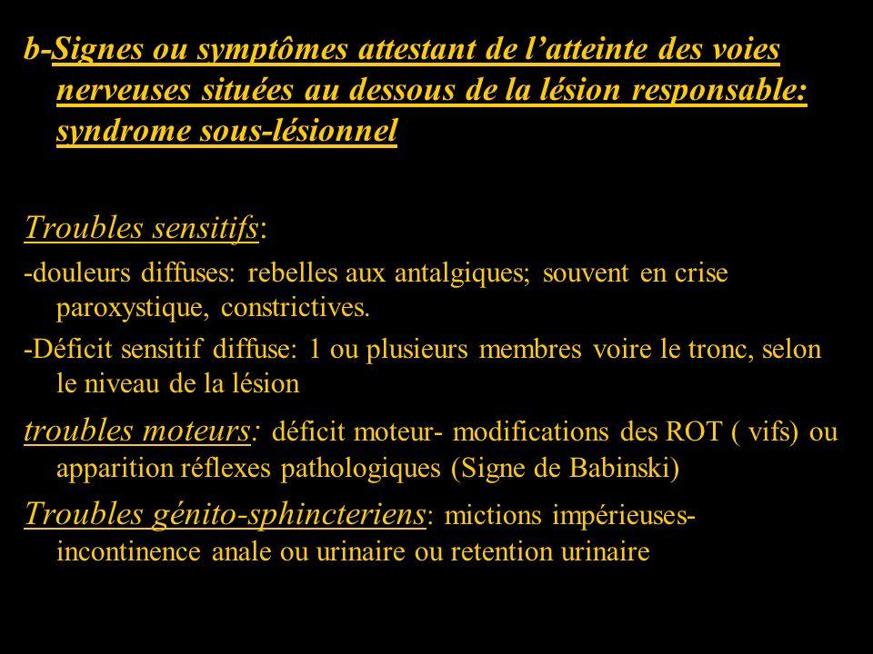b-Signes ou symptômes attestant de l'atteinte des voies nerveuses situées au dessous de la lésion responsable: syndrome sous-lésionnel