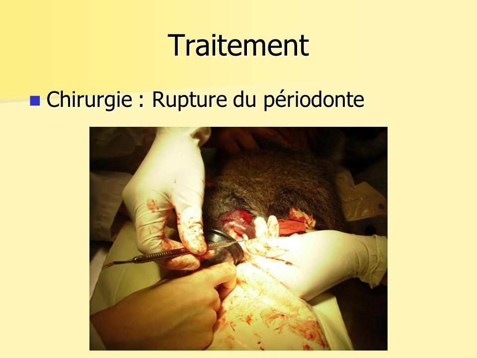 Traitement Chirurgie : Rupture du périodonte