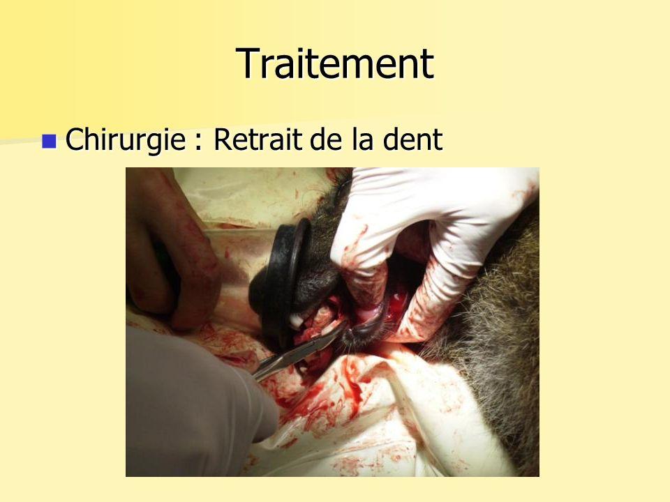Traitement Chirurgie : Retrait de la dent
