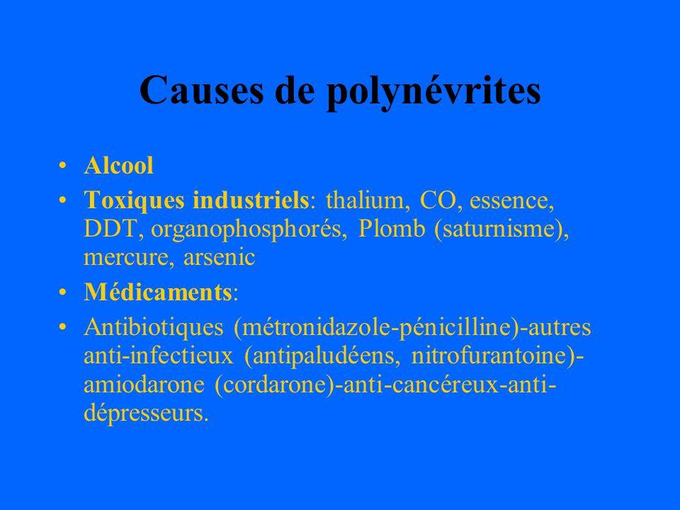 Causes de polynévrites