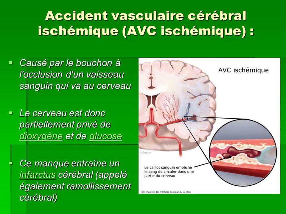 Accident vasculaire cérébral ischémique (AVC ischémique) :