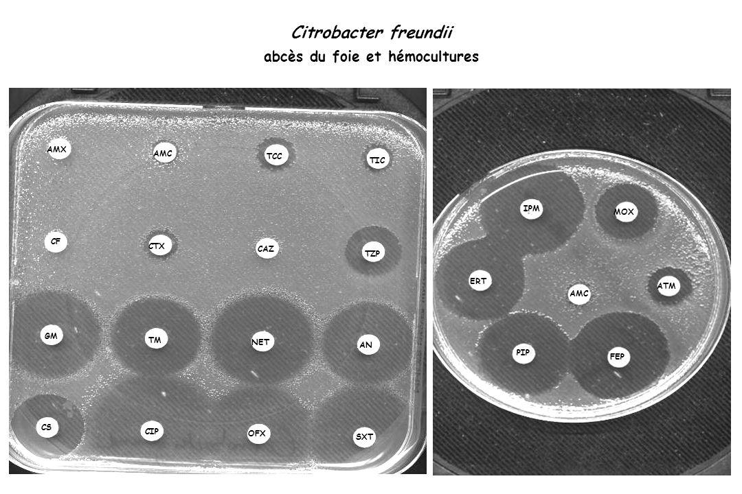 Citrobacter freundii abcès du foie et hémocultures